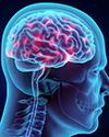 Trigeminal Neuralgia Video thumb image
