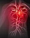 Advanced Heart