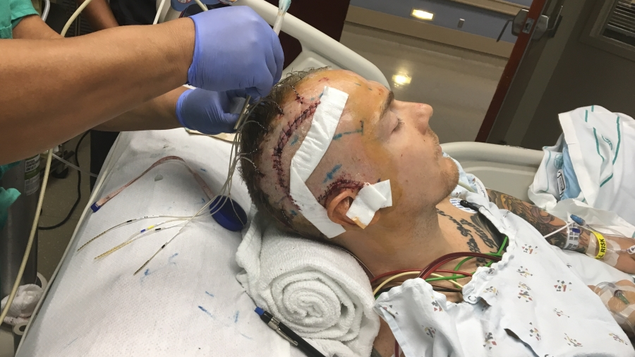 Scott Anderson after epilepsy surgery