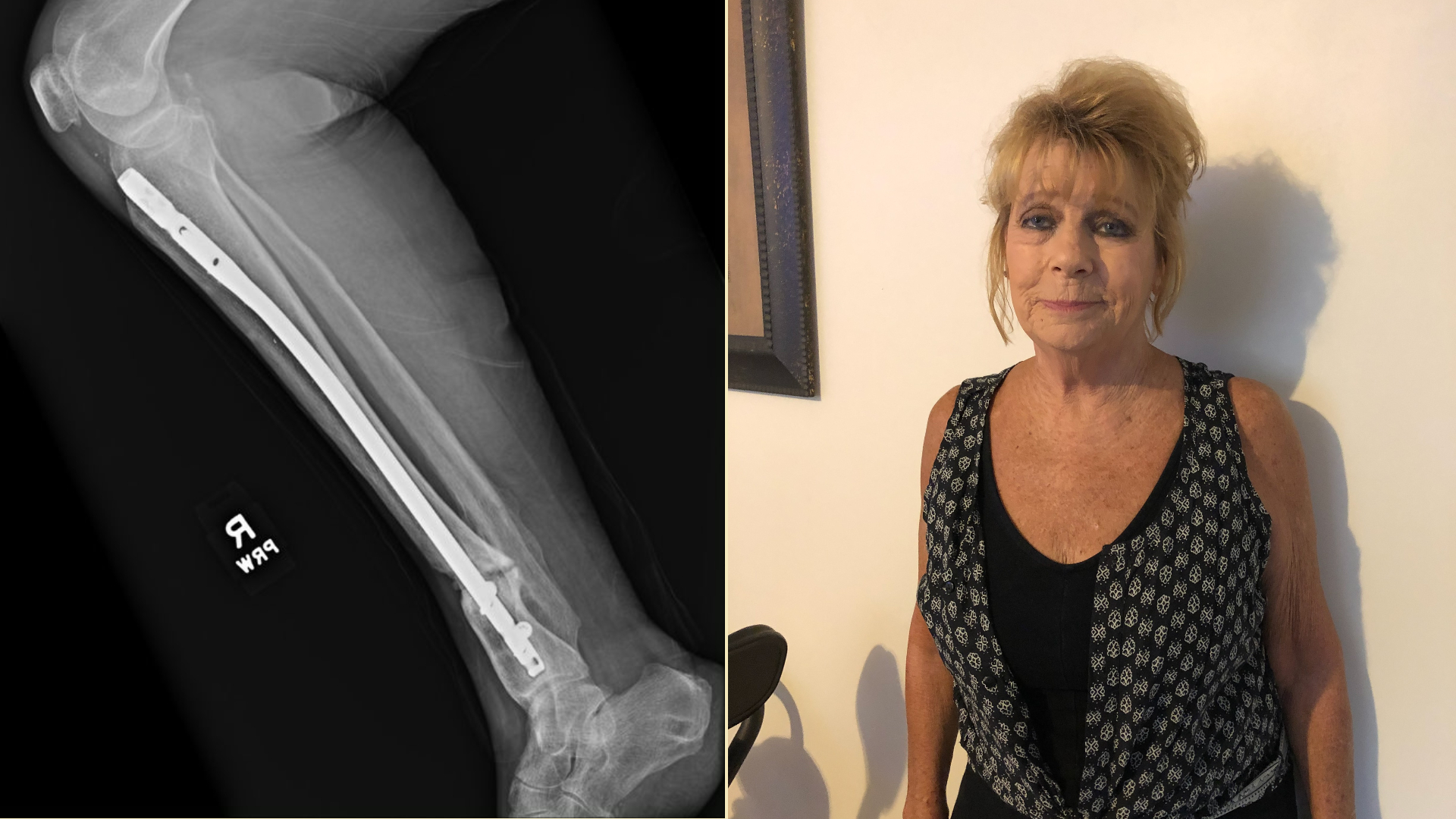After a stress fracture in 2017, Cathy Hixson started on a long, frustrating orthopaedic journey.